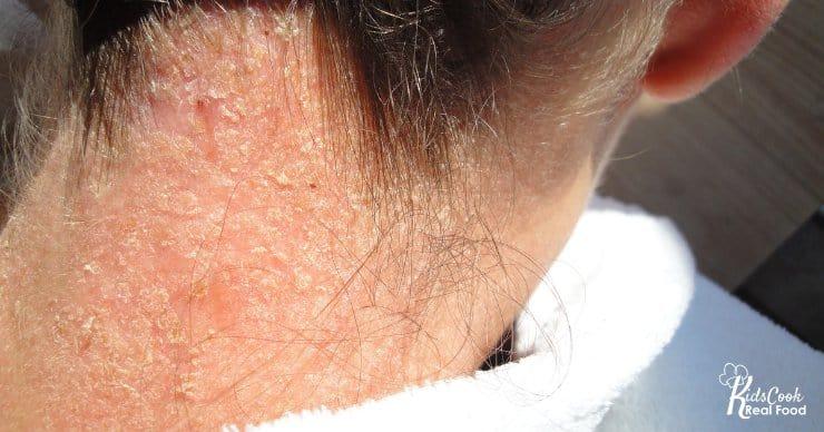 Eczema on neck